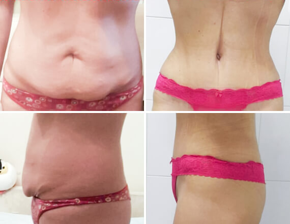 demin about abdominoplasty 01