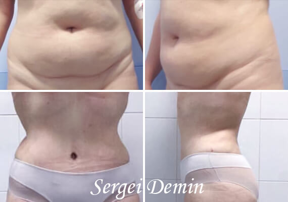demin about abdominoplasty 02