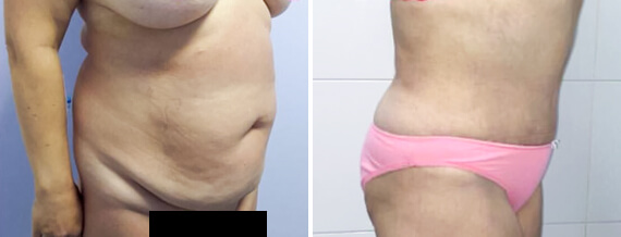 demin about abdominoplasty 04